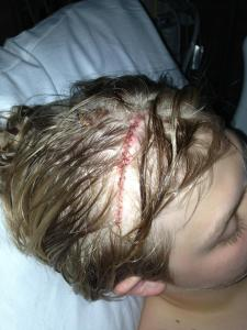 The stitches and incision site from my neurosurgery.