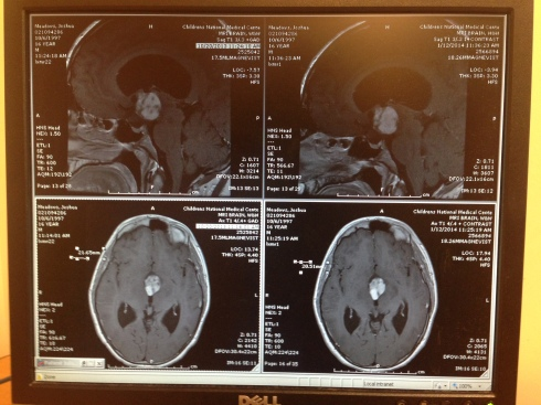 Photo comparing Eugene from one MRI to the next.